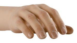 Myo Hand